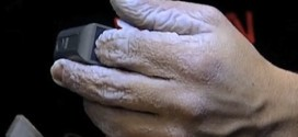 Gross Picture of the Day: What Does 10 Days Underwater Do To Your Hands?