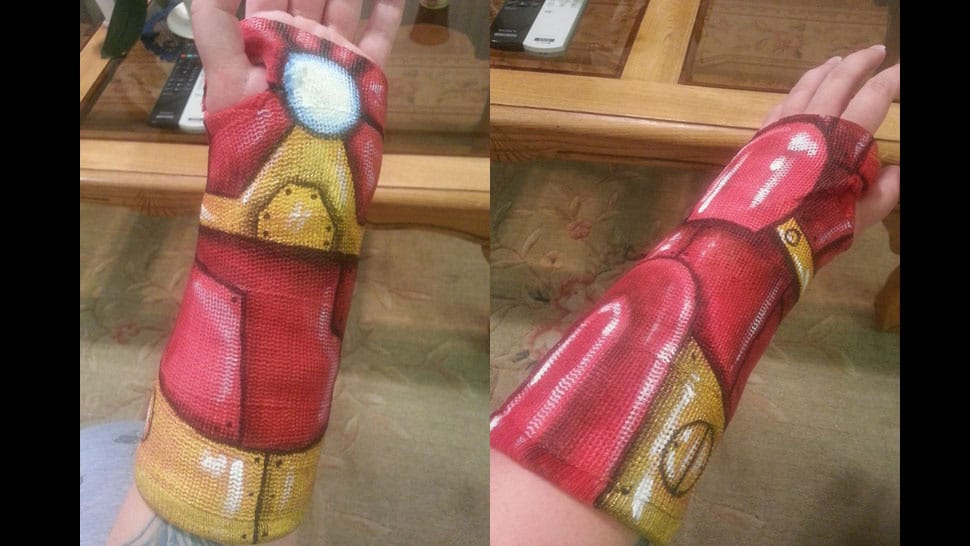 Superheros take over the emergency room again gearfuse for Arm cast decoration ideas